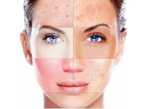 Диагностика по типу кожи